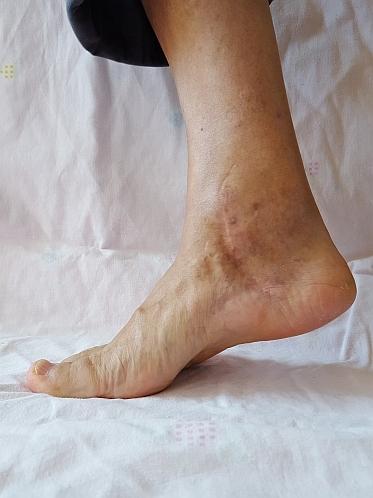 коксартроз голеностопного сустава симптомы